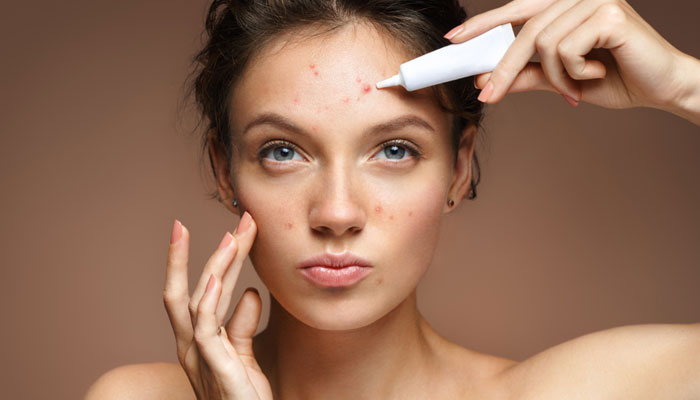 Which Type of Acne Skin Care Routine is Right For You?