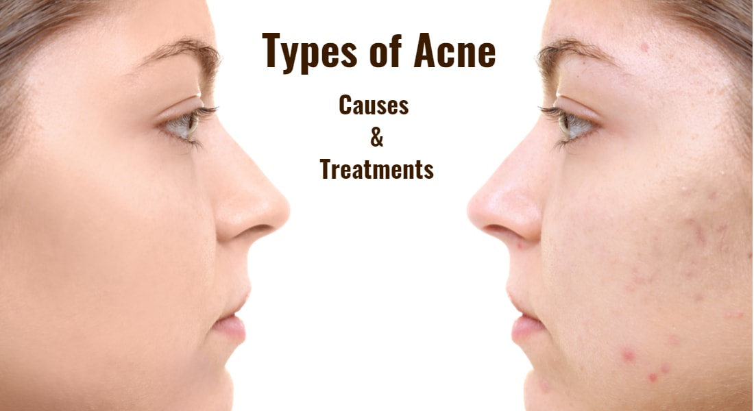 What Are the Types of Acne?